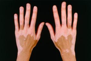 Vitiligo-20151120032238430